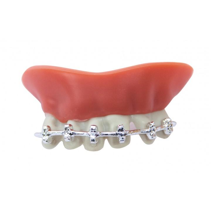 Dentier appareil dentaire -luxe